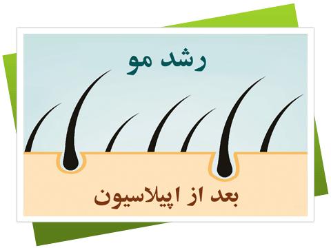 چقدر طول می کشد تا مو ها بعد از اپیلاسیون رشد کنند , رشد مجدد مو ها بعد از اپیلاسیون چقدر زمان می برد , چه مدت بعد از اپیلاسیون مو ها دوباره در می آیند